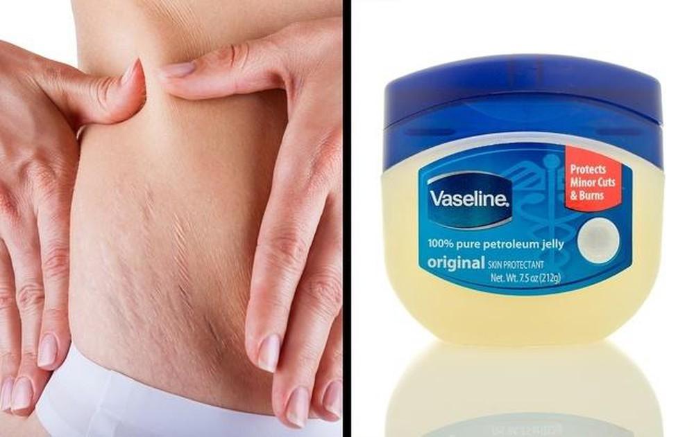 Vaseline có trị rạn da được không?