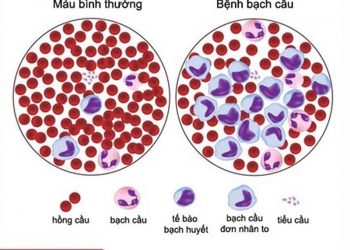 Tổng quan về bệnh bạch cầu đơn nhân nhiễm trùng