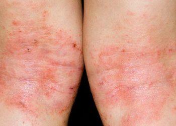 Bệnh chàm eczema và cách chữa hiệu quả tốt nhất