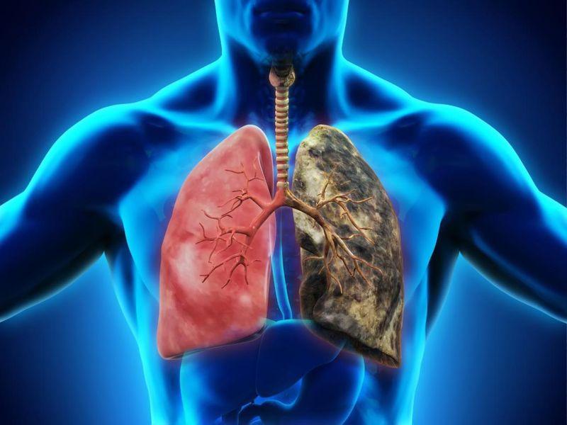 viêm phổi phế quản
