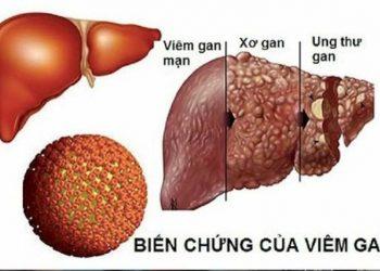 Cách phòng tránh vi rút viêm gan B