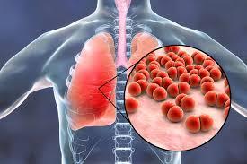 Bệnh amiđan phổi và màng phổi có thể gây ra những bệnh gì?