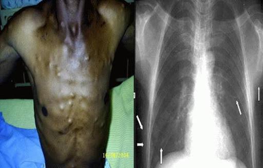 bệnh cysticercosis