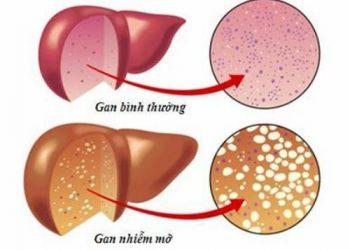 Tổng quan chung về bệnh gan nhiễm mỡ không do rượu