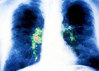 Bệnh Legionnaires – Mầm bệnh gây nguy hiểm cho con người