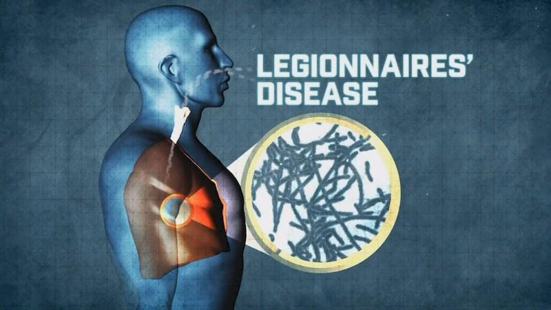 Bệnh Legionnaires