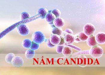 Bệnh nấm Candida – Gây ra viêm hầu họng và âm đạo nguy hiểm