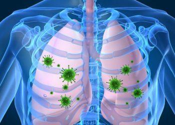 Tổng quan chung về bệnh nhiễm trùng phổi và màng phổi