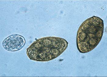 Tổng quan về bệnh paragonimiasis và những triệu chứng của nó