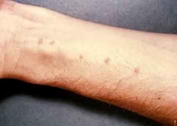 Bệnh sán máng – Mức độ nguy hiểm ra sao?