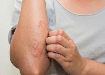 Bệnh sán máng – Cách chuẩn đoán bệnh và ngăn ngừa