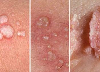 Bệnh sùi mào gà là bệnh gì? Lây nhiễm như thế nào?