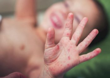 Bệnh tay chân miệng, nguyên nhân và cách chữa
