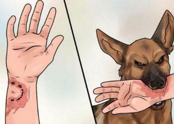 Tất tần tật về bệnh truyền nhiễm lây truyền qua động vật