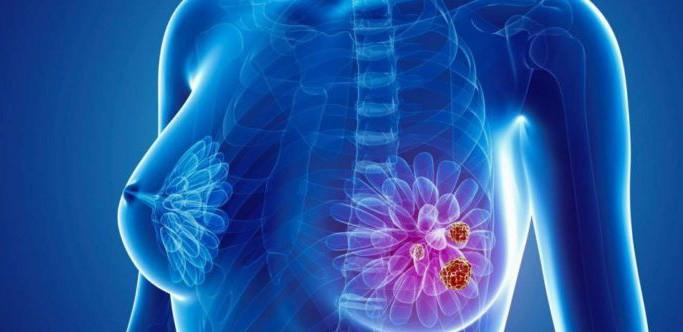 Bệnh ung thư vú có thể gây ra những bệnh gì?