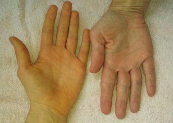 Tổng quan chung về bệnh vàng da phổ biến hiện nay
