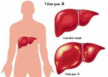 Bệnh viêm gan A và những thông tin cần biết về nó