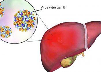 Bệnh viêm gan B là gì? Nguyên nhân, cách chữa