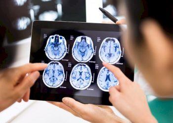 Bệnh viêm màng não do lao thực sự rất nguy hiểm