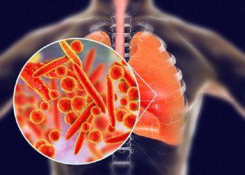 Bệnh viêm phổi do Legionnaires – Các triệu chứng, chẩn đoán ngăn ngừa bệnh