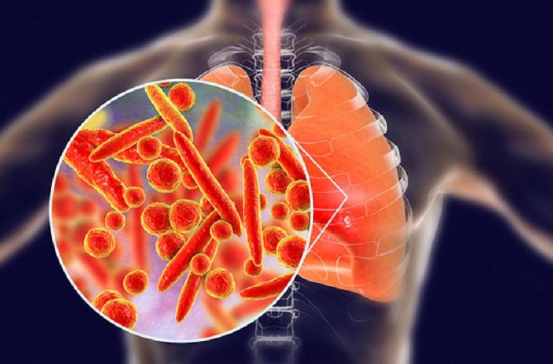 Bệnh viêm phổi do Legionnaires
