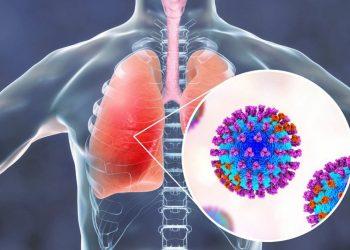 Tổng quan về bệnh viêm phổi do phế cầu thường thấy