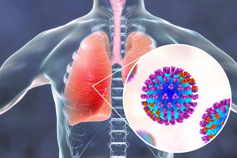 bệnh viêm phổi do phế cầu