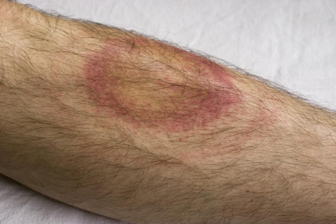 Các hạng mục kiểm tra bệnh Lyme là gì?
