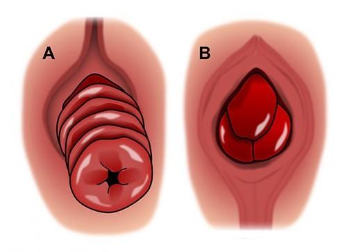 Các hạng mục kiểm tra bệnh sa tử cung là gì?