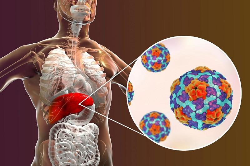 Các hạng mục kiểm tra bệnh viêm gan A là gì?