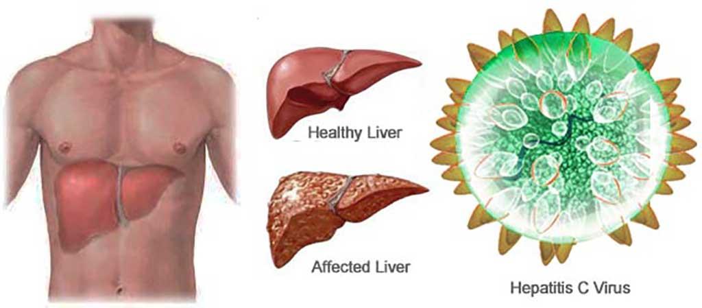 Các hạng mục kiểm tra bệnh viêm gan là gì?