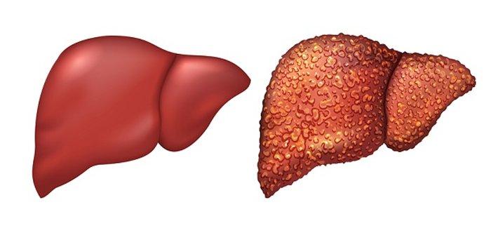 Các phương pháp điều trị bệnh viêm gan siêu vi G là gì?