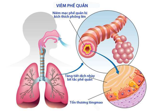 Các phương pháp điều trị bệnh viêm phổi do phế cầu