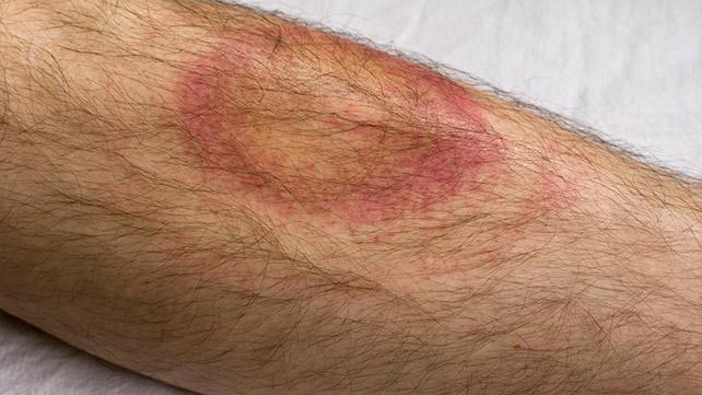 Các triệu chứng của bệnh Ehrlichiosis là gì?