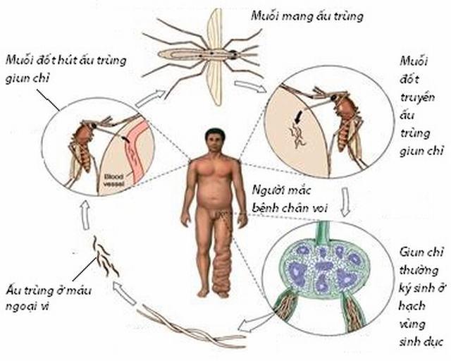 Các triệu chứng của bệnh giun chỉ là gì?