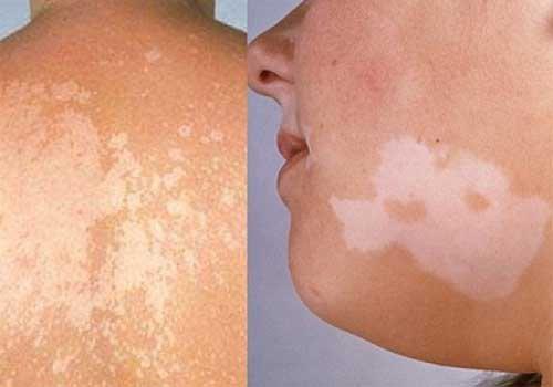 Các triệu chứng của bệnh nấm sắc tố là gì?