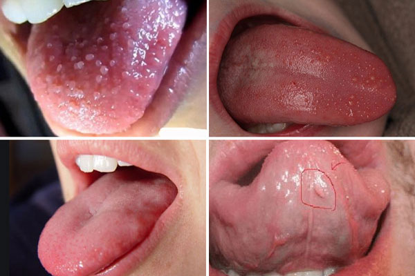 Các triệu chứng của bệnh sùi mào gà ở miệng là gì?