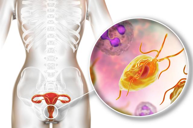 Các triệu chứng của bệnh trichomonas là gì?