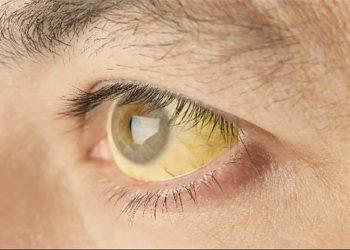 Bệnh viêm gan E và nguyên nhân gây bệnh, chế độ ăn uống hợp lý