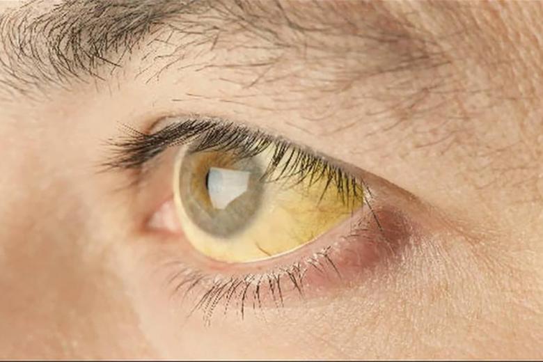 Các triệu chứng của bệnh viêm gan E là gì?