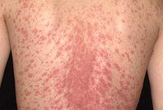 Các triệu chứng của eperythrozoonosis là gì?