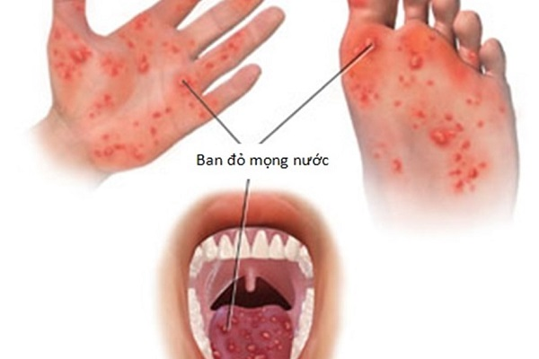 Các triệu chứng của nhiễm enterovirus 71 là gì?
