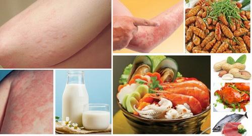 Chế độ ăn cho trẻ bị mẩn ngứa cấp tính