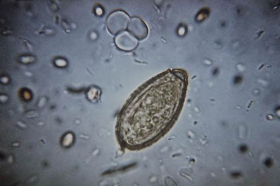 Clonorchiasis Sinensis