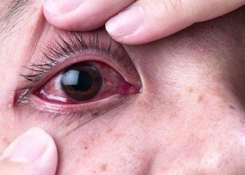 Đau mắt đỏ – căn bệnh nguy hiểm có thể dẫn tới mù vĩnh viễn