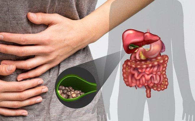 Hội chứng kết dính co thắt túi mật - đại tràng gan có thể gây ra những bệnh gì?