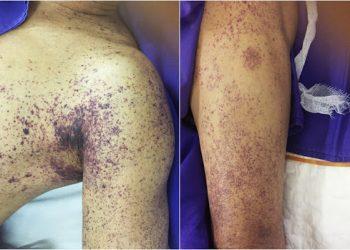 Hội chứng sốc nhiễm độc do liên cầu và cách chẩn đoán, điều trị