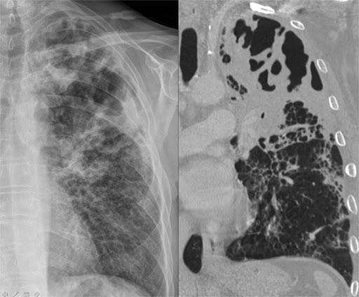 Làm thế nào để chẩn đoán phân biệt bệnh viêm phổi cầu?