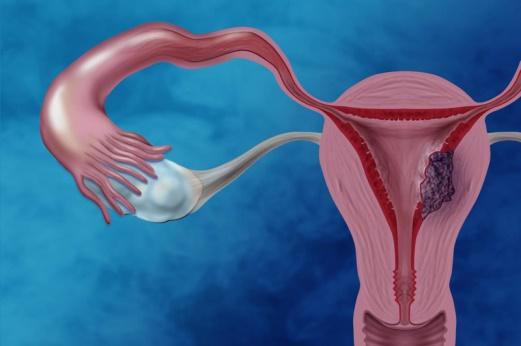 Làm thế nào để chẩn đoán phân biệt u nang buồng trứng?