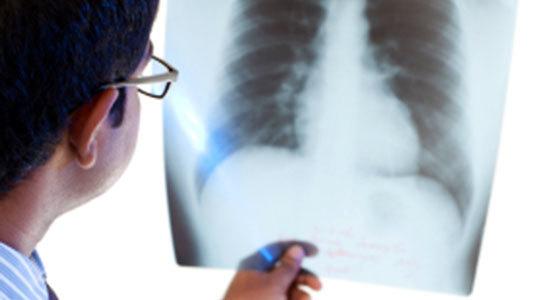 Làm thế nào để ngăn ngừa bệnh Legionnaires 'viêm phổi?
